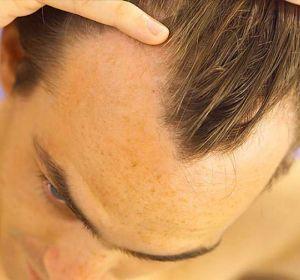 Причины раннего облысения у мужчин в зависимости от типа