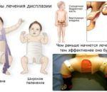 Врожденный вывих бедра: причины, симптомы и лечение