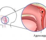 Аденоиды: от комплексной и лазерной терапии до народных средств