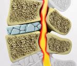 Спондилоартроз шейного отдела: причины, симптомы и лечение