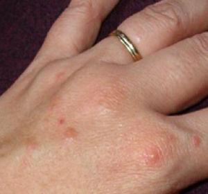 Лечение дисгидроза – причины, симптомы и способы терапии