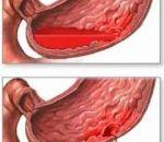 Желудочное кровотечение: причины, признаки, симптомы и лечение
