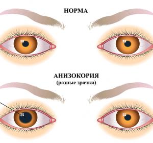 Анизокория: что это такое, причины, симптомы и лечение