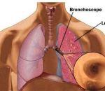 Эндоскопия желудка — в каких случаях и кому назначается, виды и техника исследования, противопоказания