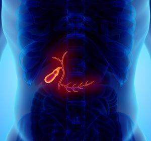 Холецистит — причины, признаки, симптомы и лечение