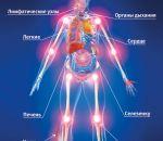 Увеличение лимфоузлов: причины, симптомы и лечение