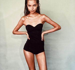 Причины анорексии: возникновение болезни