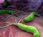 Эрозивный антральный гастрит: виды, симптомы, лечение