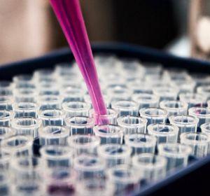 Пациент с ВИЧ впервые получил CRISPR-отредактированные клетки крови