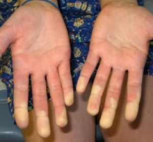 Диагностика и лечение системного склероза