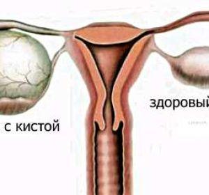Выделения при кисте яичника — признаки и симптомы заболевания у женщин