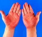 Псевдотуберкулез – симптомы у взрослых, формы заболевания