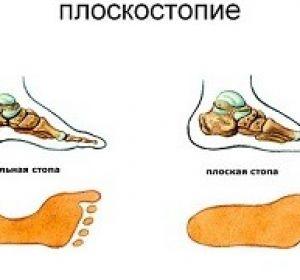 Лечение вывиха стопы в домашних условиях — лечебная гимнастика и массаж