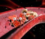 Гиперхолестеринемия — причины, симптомы и лечение