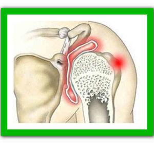 Синовит плечевого сустава: что это такое, симптомы, лечение в домашних условиях