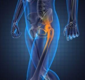Боли в бедре при ходьбе — возможные причины и способы лечения