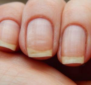 Белые полосы на ногтях: причины, симптомы и лечение