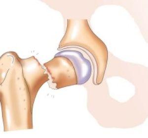 Последствия перелома шейки бедра и варианты реабилитации