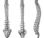 Опасная травма: перелом позвоночника со смещением