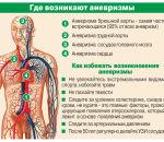 Аневризма головного мозга — признаки патологии, проявления, как диагностировать и лечить