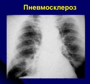 Пневмосклероз — симптомы, лечение и чем опасен