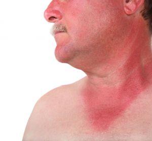 Симптомы мышиной лихорадки у мужчин — характерные проявления
