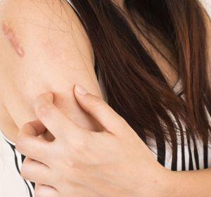 Стригущий лишай: причины, симптомы (фото) и лечение