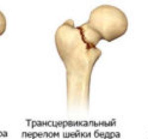 Перелом шейки бедра — симптомы, оказание помощи и восстановление после травмы