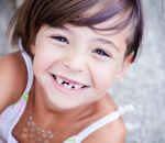 Открытый прикус: симптомы и лечение у ребенка и взрослого