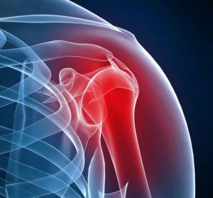 Акромиально-ключичный артроз сустава: лечение