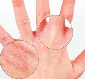 Профессиональное лечение экземы на руках — гарантия быстрого исцеления