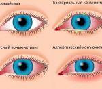 Аденовирусный конъюнктивит: причины, симптомы, лечение