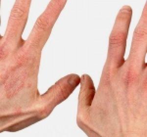 Признаки псориаза у женщин, симптомы и стадии заболевания
