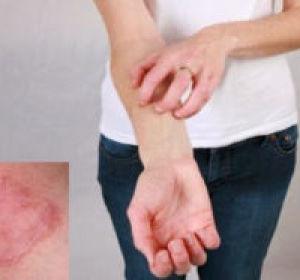 Кокцидиомикоз легких, костей, кожи: что это такое, симптомы, фото, лечение