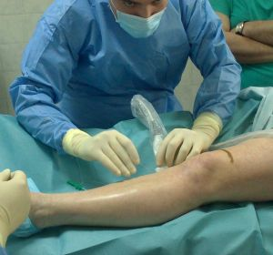 Склеротерапия вен нижних конечностей — виды терапии, препараты и осложнения