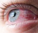 Аденовирусный конъюнктивит у взрослых — формы заболевания и медикаментозная терапия