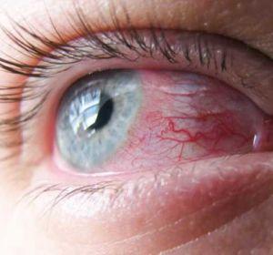 Вирусный конъюнктивит — причины, симптомы и лечение