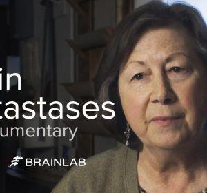 Отек головного мозга — причины, симптомы и лечение