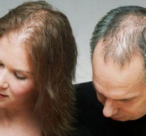 Причины очагового облысения у мужчин — почему выпадают волосы