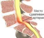 Синдром позвоночной артерии — причины, признаки, способы лечения.