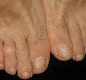 Как лечить сухие мозоли на пальцах ног?