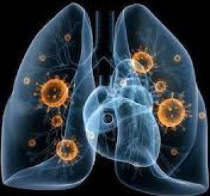 Причины и характерные признаки воспаления легких, нюансы лечения