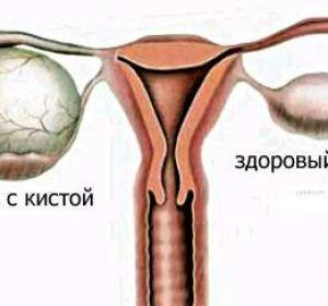 Лечение фолликулярной кисты яичника