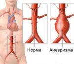 Расслаивающая аневризма аорты — причины, симптомы и лечение