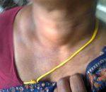 Гиперплазия щитовидной железы: причины, симптомы, лечение