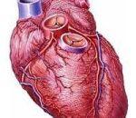 Виды, причины и способы лечения стенокардии