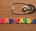 Брадикардия — причины, признаки, симптомы и лечение