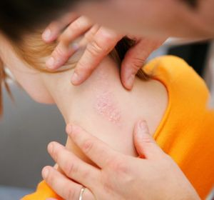 Виды псориаза — как определить по симптомам, признакам и проявлениям