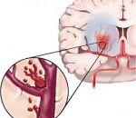 Инсульт головного мозга: причины, диагностика и методы лечения