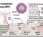 Причины баланопостита у мужчин — признаки и проявления заболевания